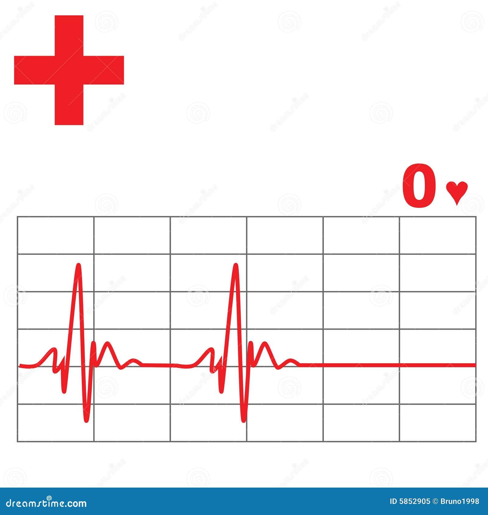 free heart monitor clipart - photo #28