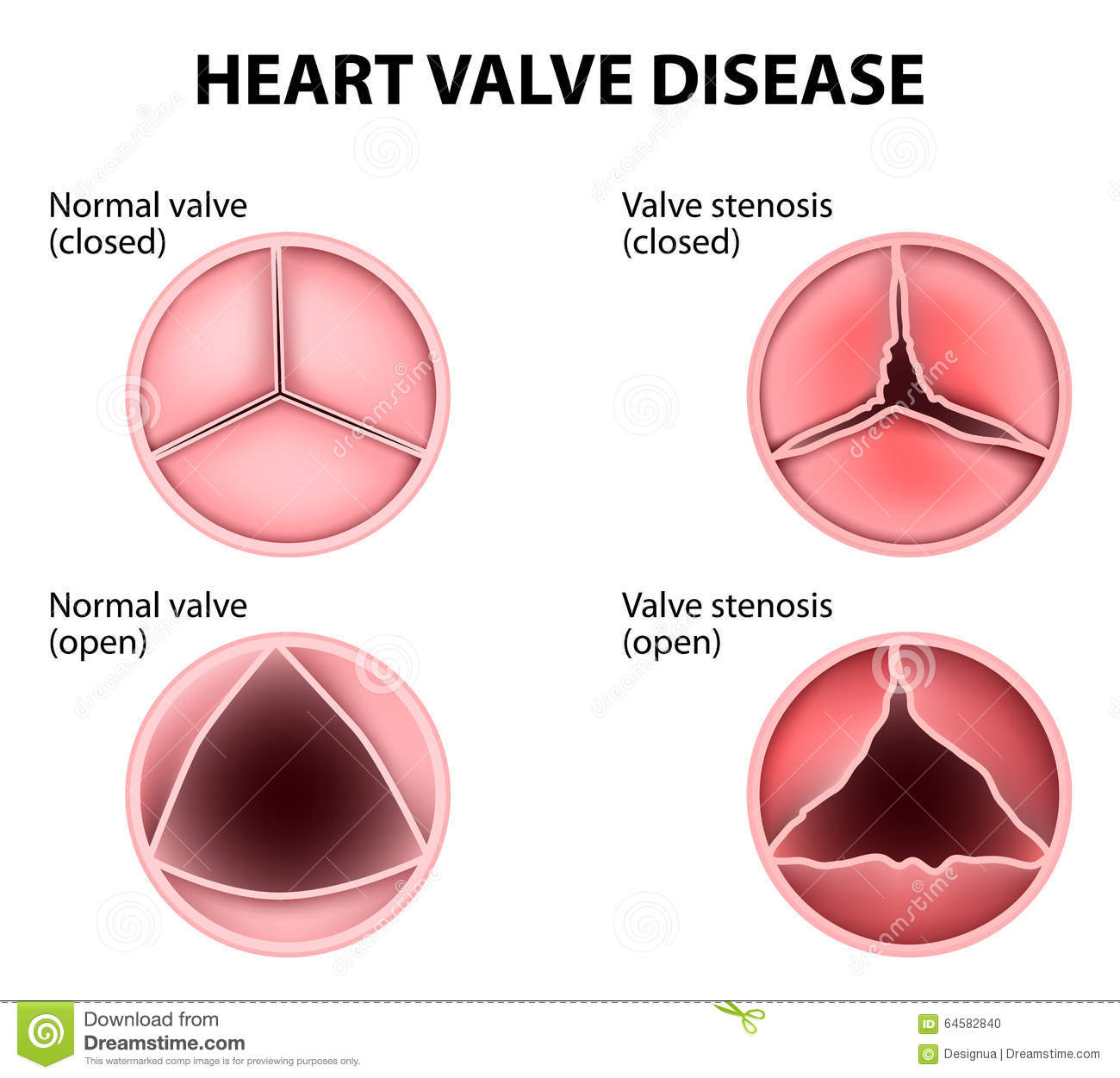 Heart Valve Disease Stock Vector - Image: 64582840