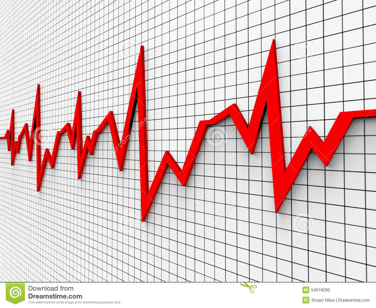 Heartbeat chart shows flat screen and cardiograph stock