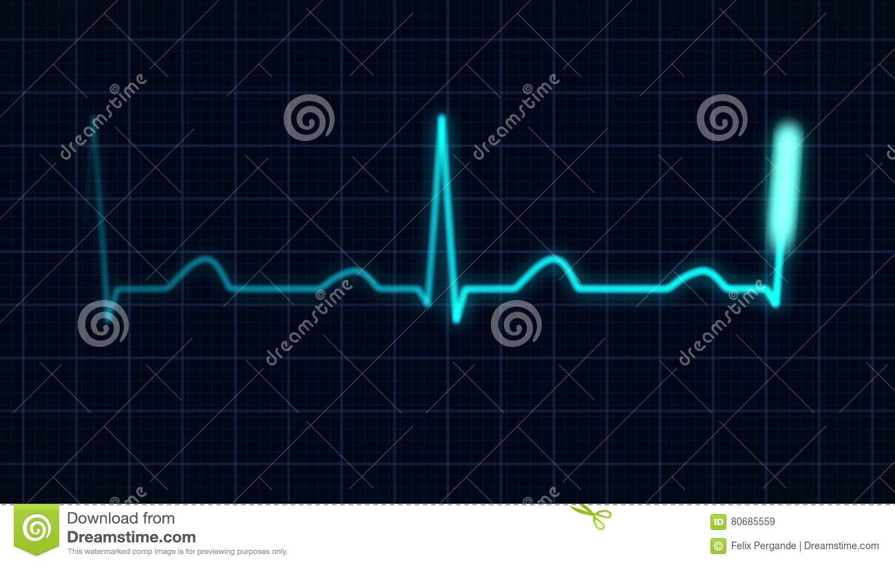 Heartbeat curve stock video illustration of equipment 80685559 ccuart Gallery