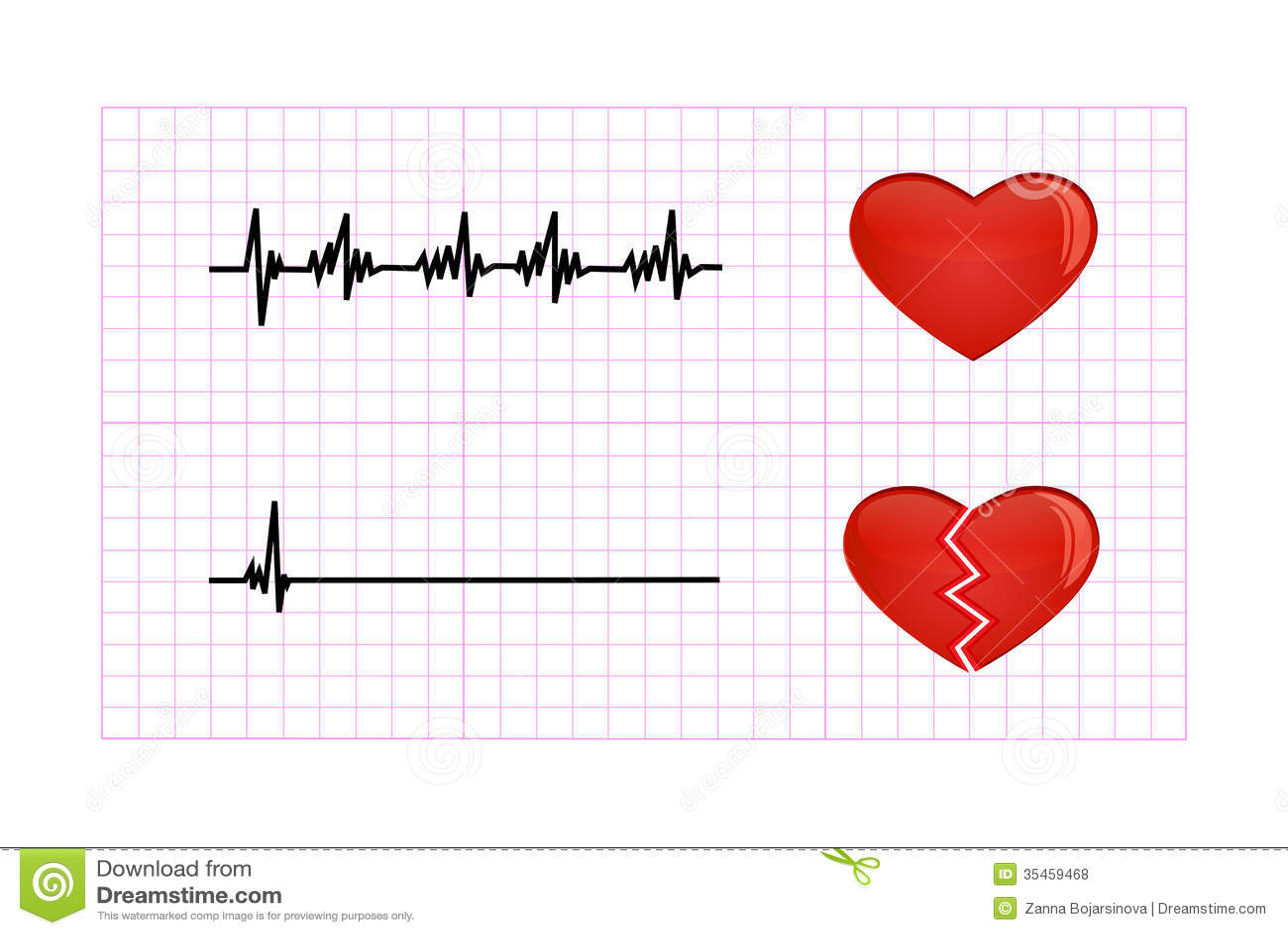 Heartbeat Diagram Illustration Royalty Free Stock Photos