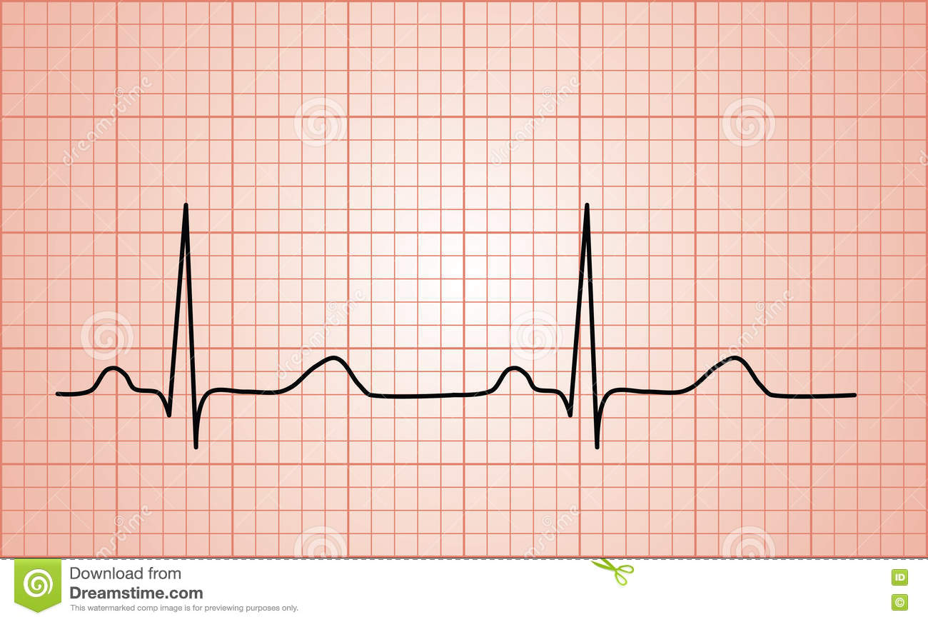 Heartbeat Normal ECG graph