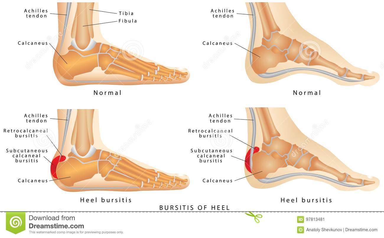 Haglund`s Deformity Of The Heel Stock Vector - Illustration of foot ...