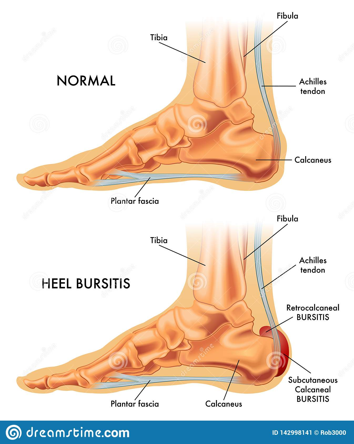 Heel bursitis illustration