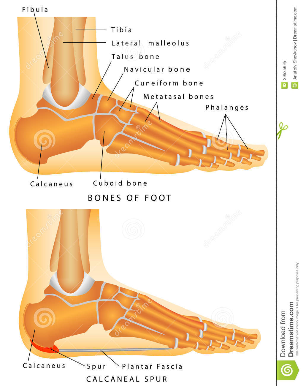 Heel Spur. Bones of the Foot and Ankle. Calcaneal spur. Calcaneal spur ...