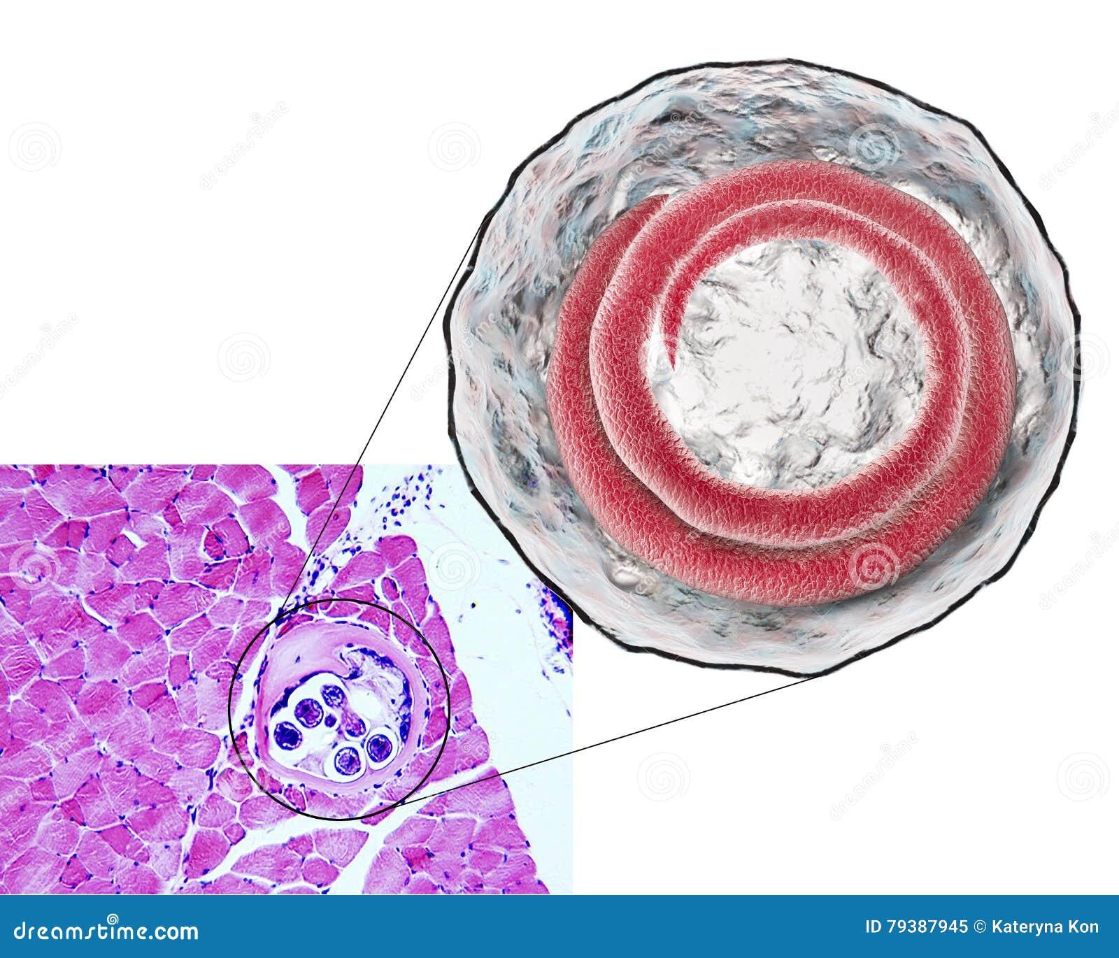 helminth trichinosis)