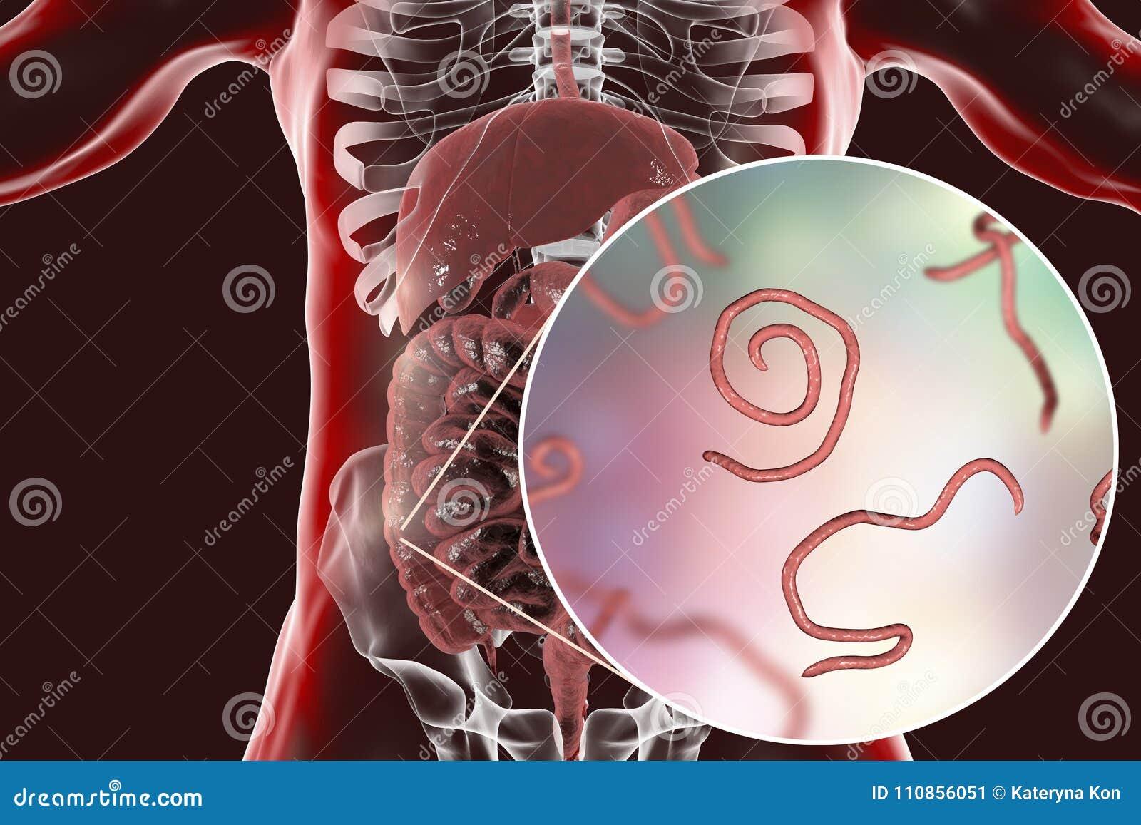 Helminths Nematodes Enterobius In The Gut Stock Illustration ...