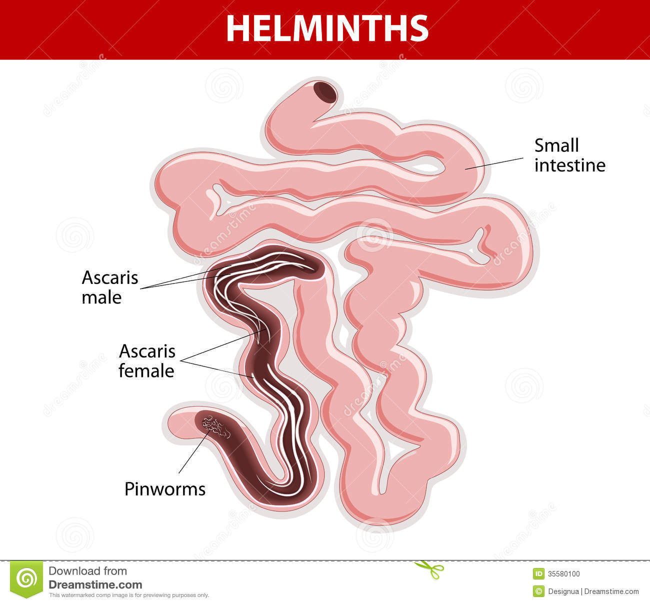 Helminths On Small Intestine Stock Vector Image 35580100