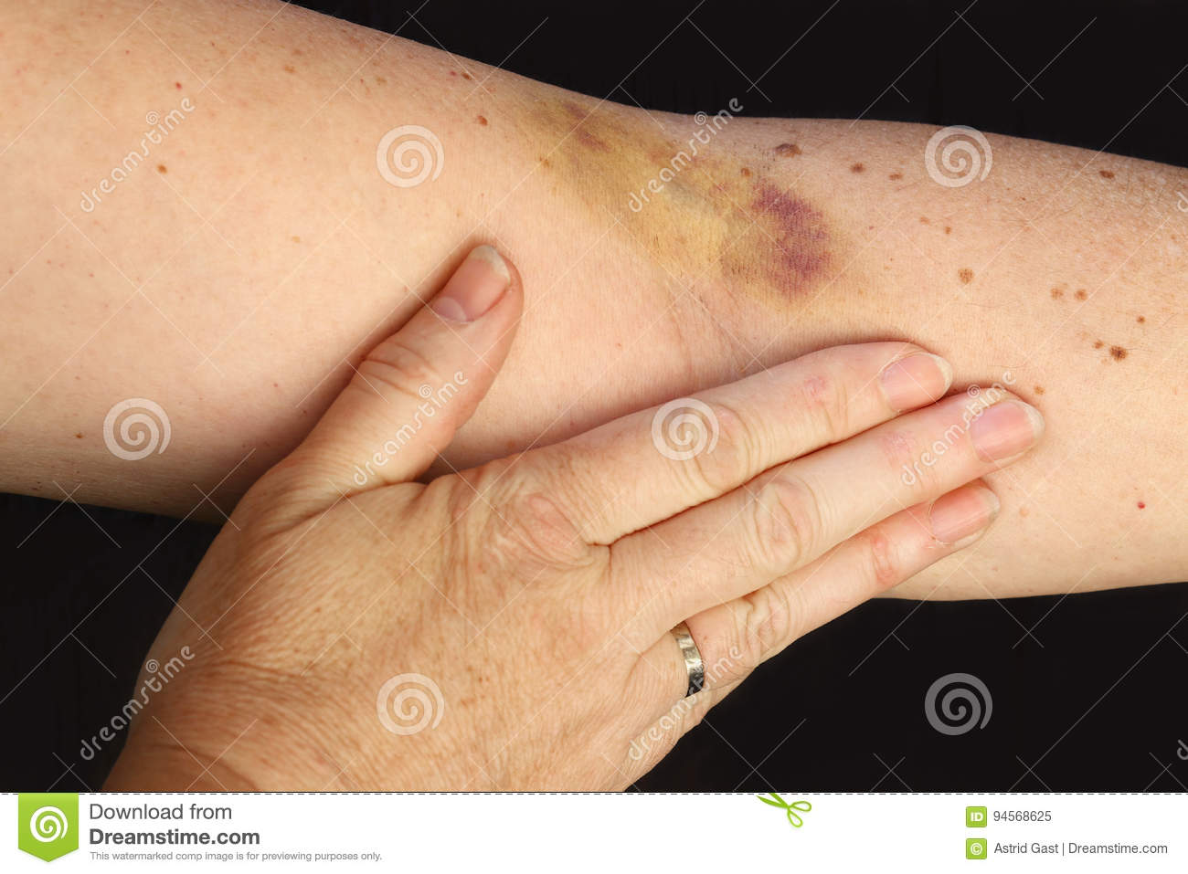 A Hematoma On A Woman`s Arm Stock Image - Image of
