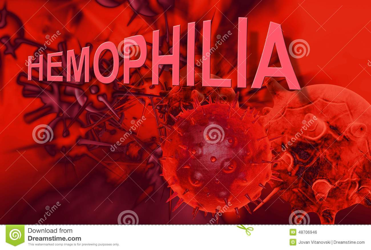 hemophilia genetic blood Bleeding disorders are a group of conditions that result when the blood cannot clot properly depending on how much clotting factor is present in the blood hemophilia is classified as type a or type b hemophilia results from a genetic defect found on the x chromosome women have two x.