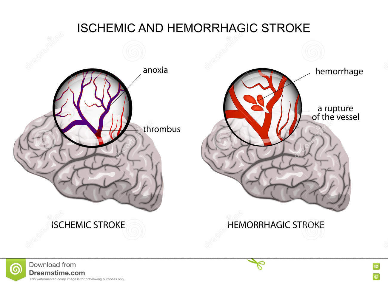 Hemorrhagic And Ischemic Stroke Stock Vector