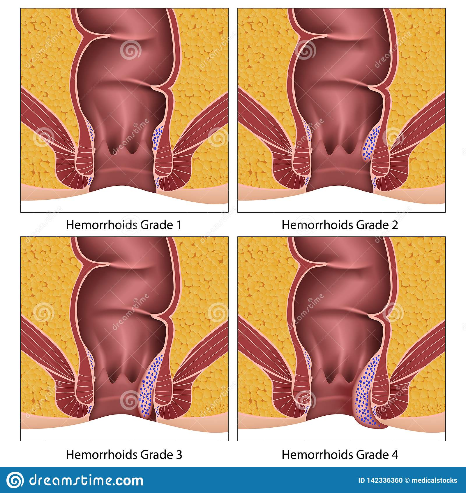 Hemorrojder graderar diagrammet för information om anatomiutbildning på vit bakgrund