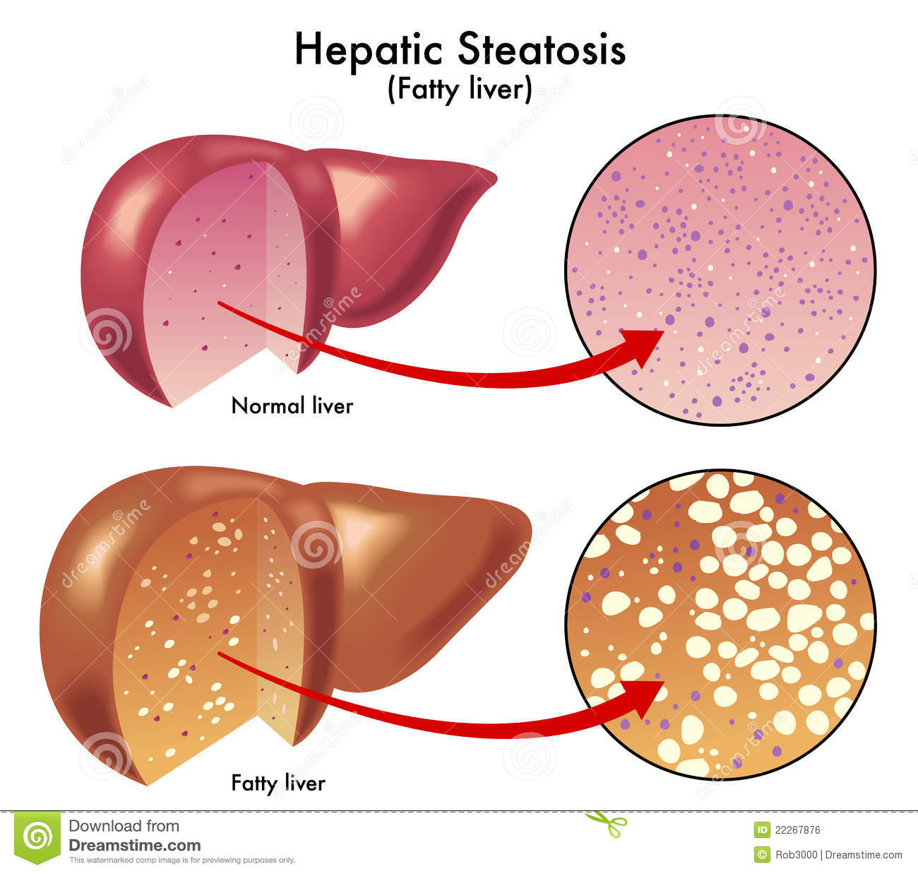 Medical illustration of the effects of the Hepatic steatosis.