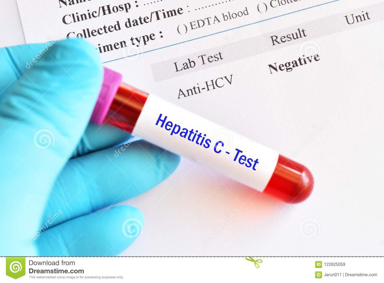 Blood test for hepatitis