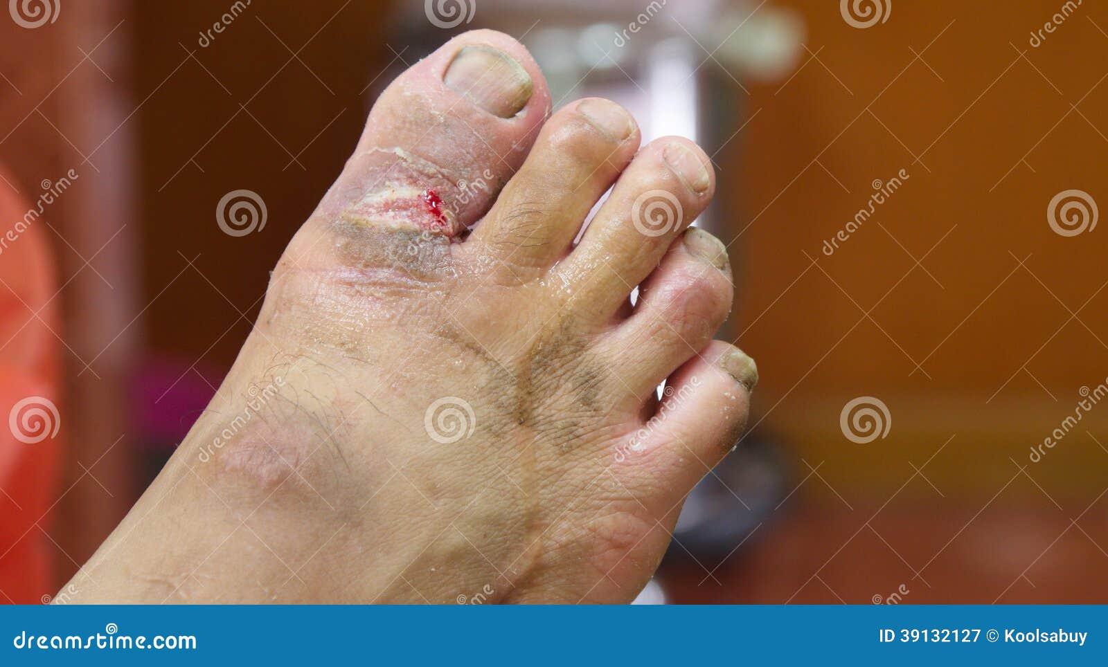 fotos de pie gangrena diabetes