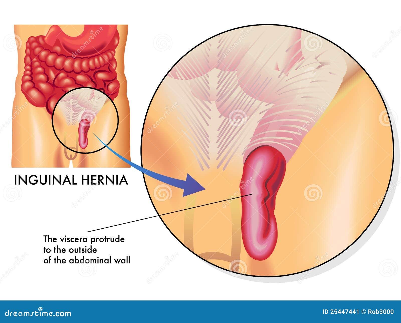 Dorable Anatomía Y Fisiología De La Hernia Inguinal Ideas - Anatomía ...