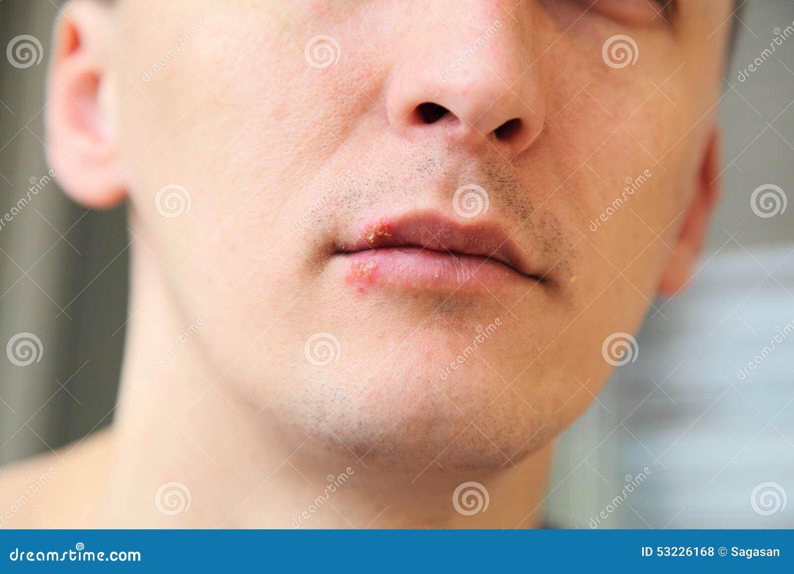 Herpes en los labios