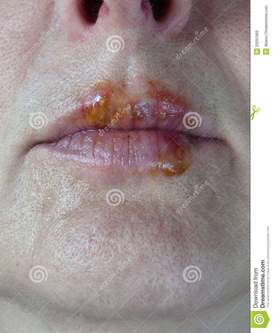 Herpes Mouth Sores Lips Virus Royalty Free Stock Images ...