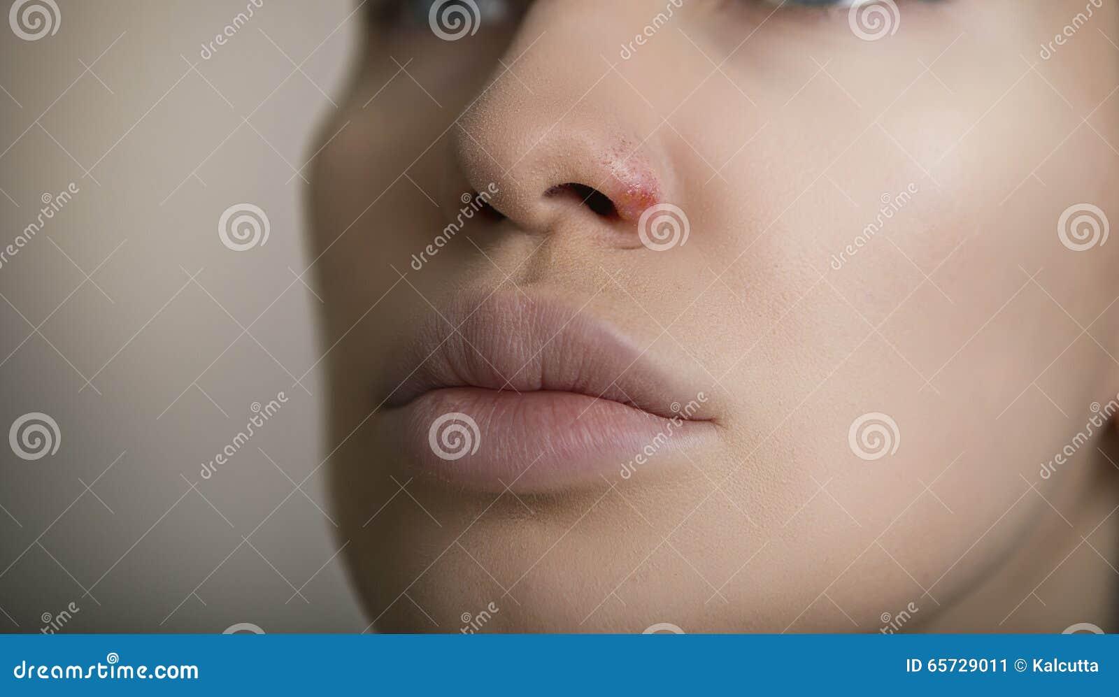 herpes i näsan