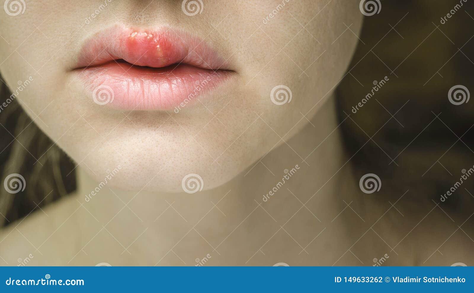 Forkølelsessår på tungen