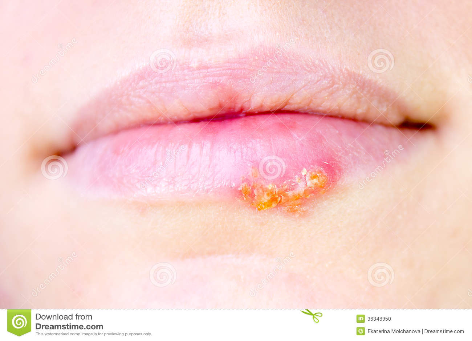 Herpes Virus On Female Lips Stock Photo - Image: 36348950