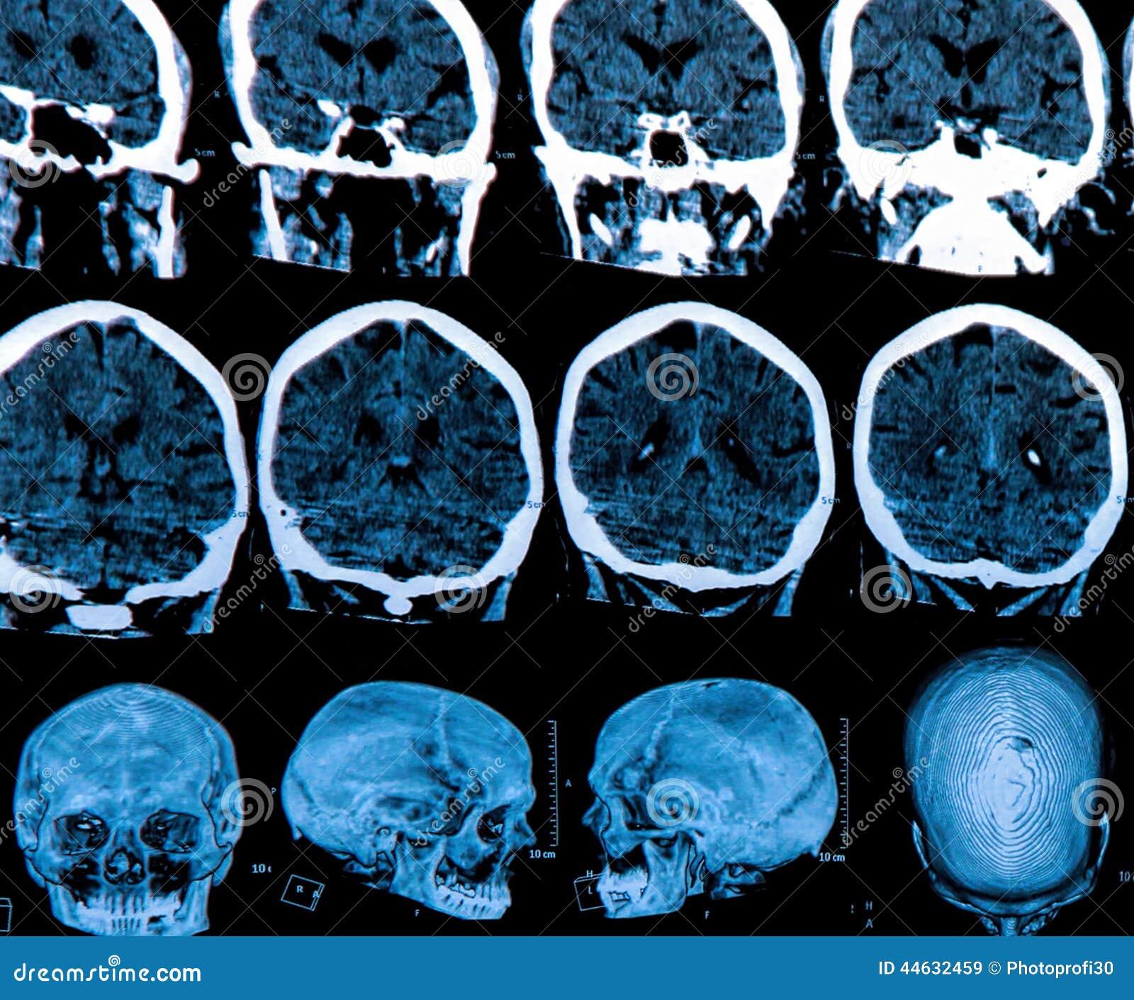 Het Aftasten van de Hersenen van Mri