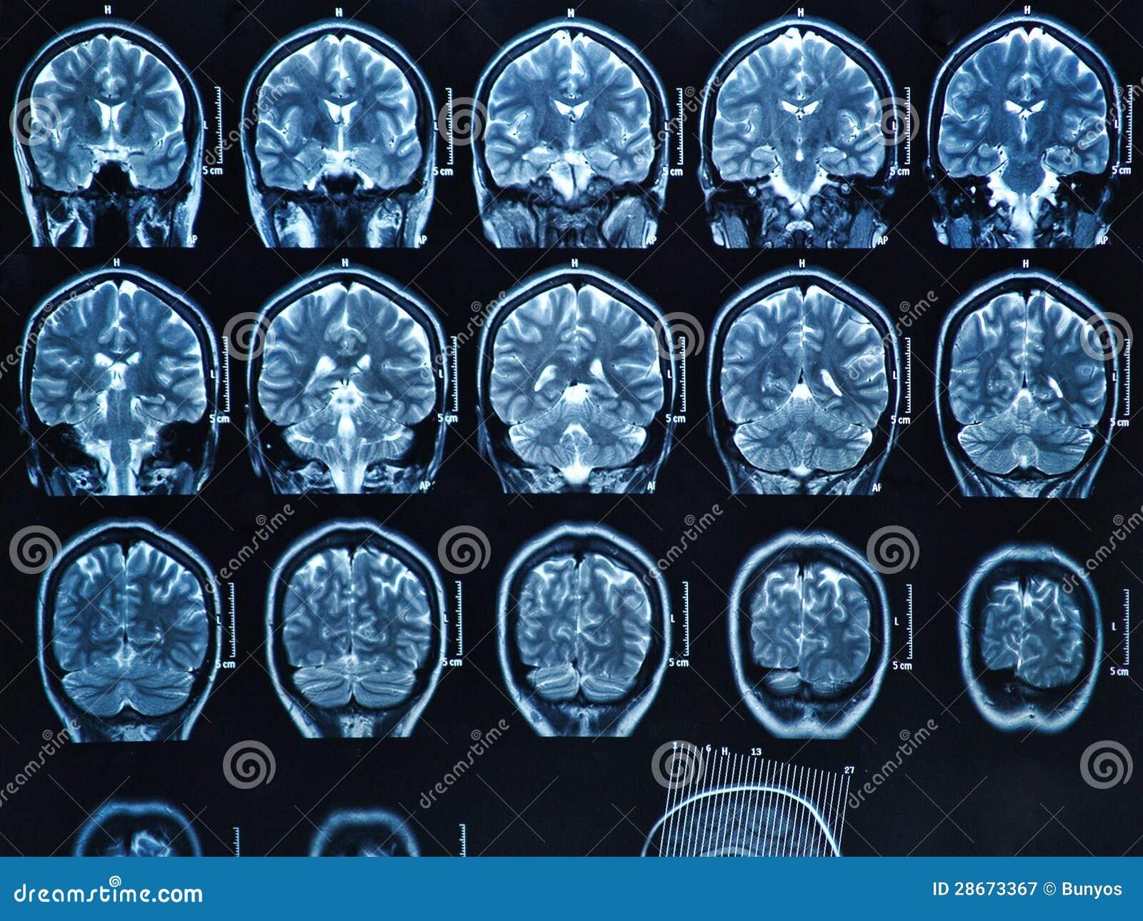 Het Aftasten van Hersenen MRI