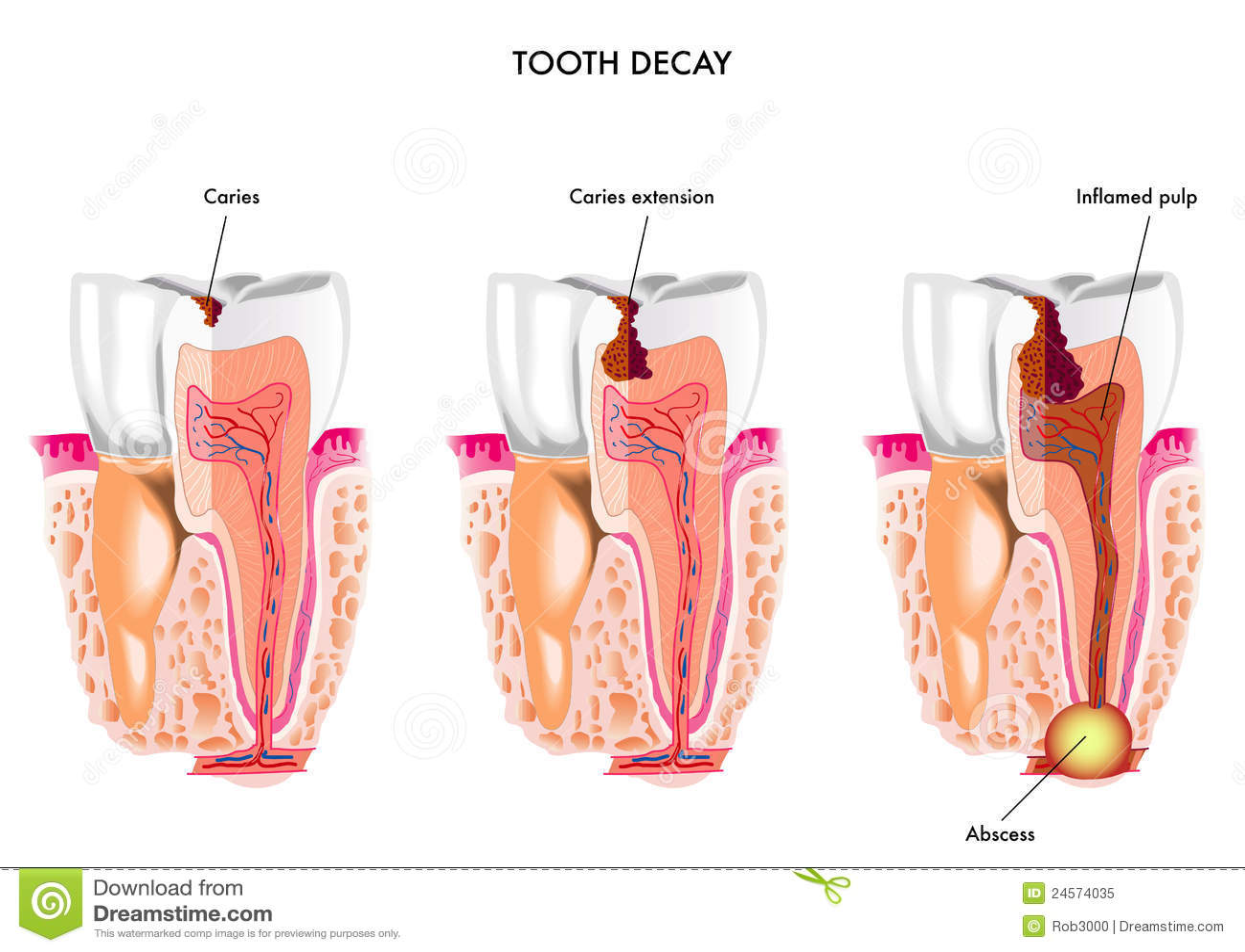 Het bederf van de tand