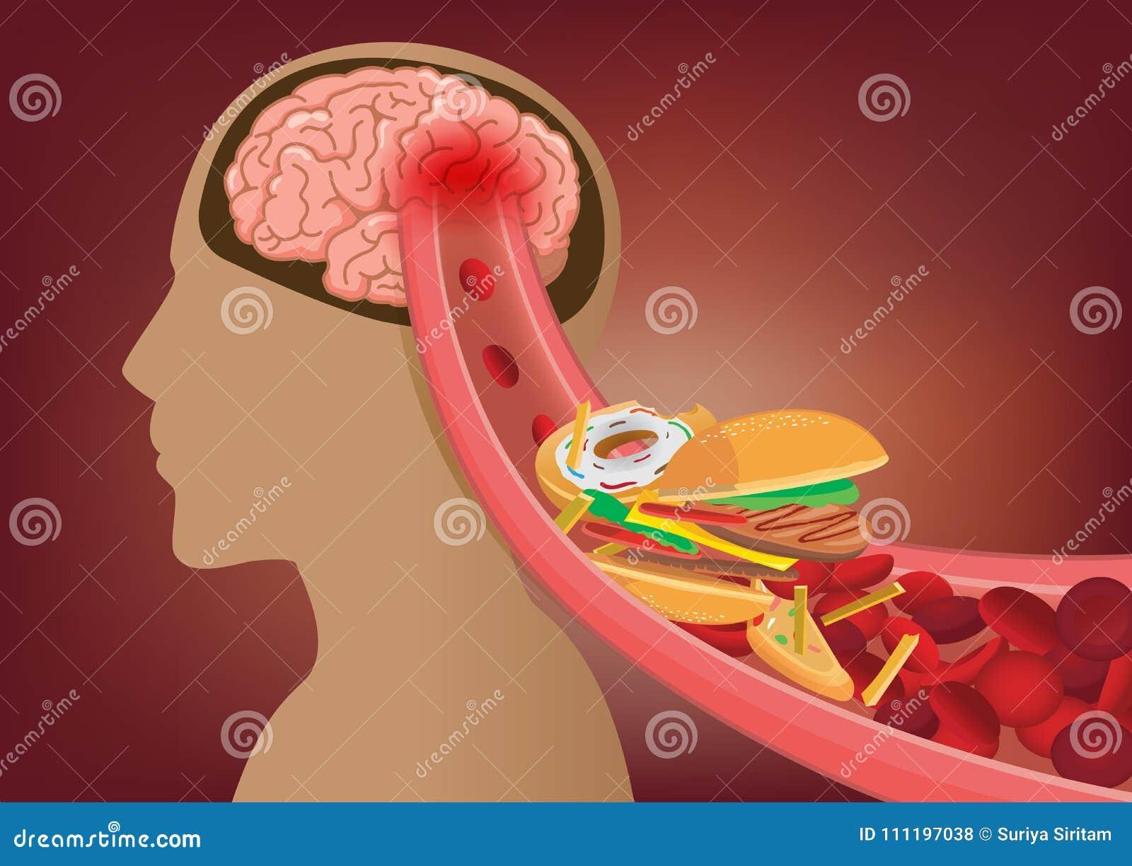 Het bloed kan de stroom van ` t in menselijke hersenen omdat het snelle voedsel belemmerde slagaders maakte