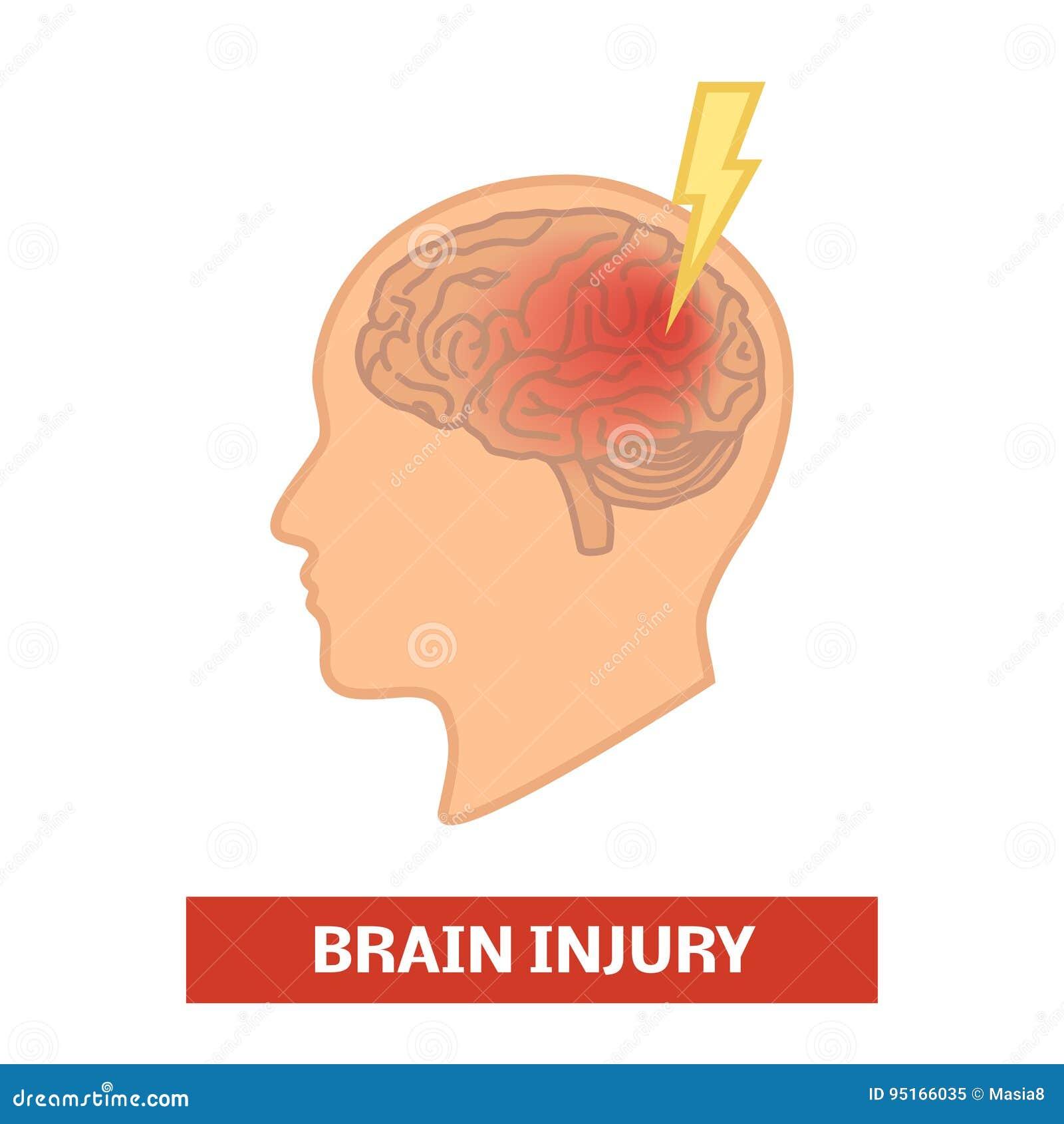 Het concept van de hersenenverwonding