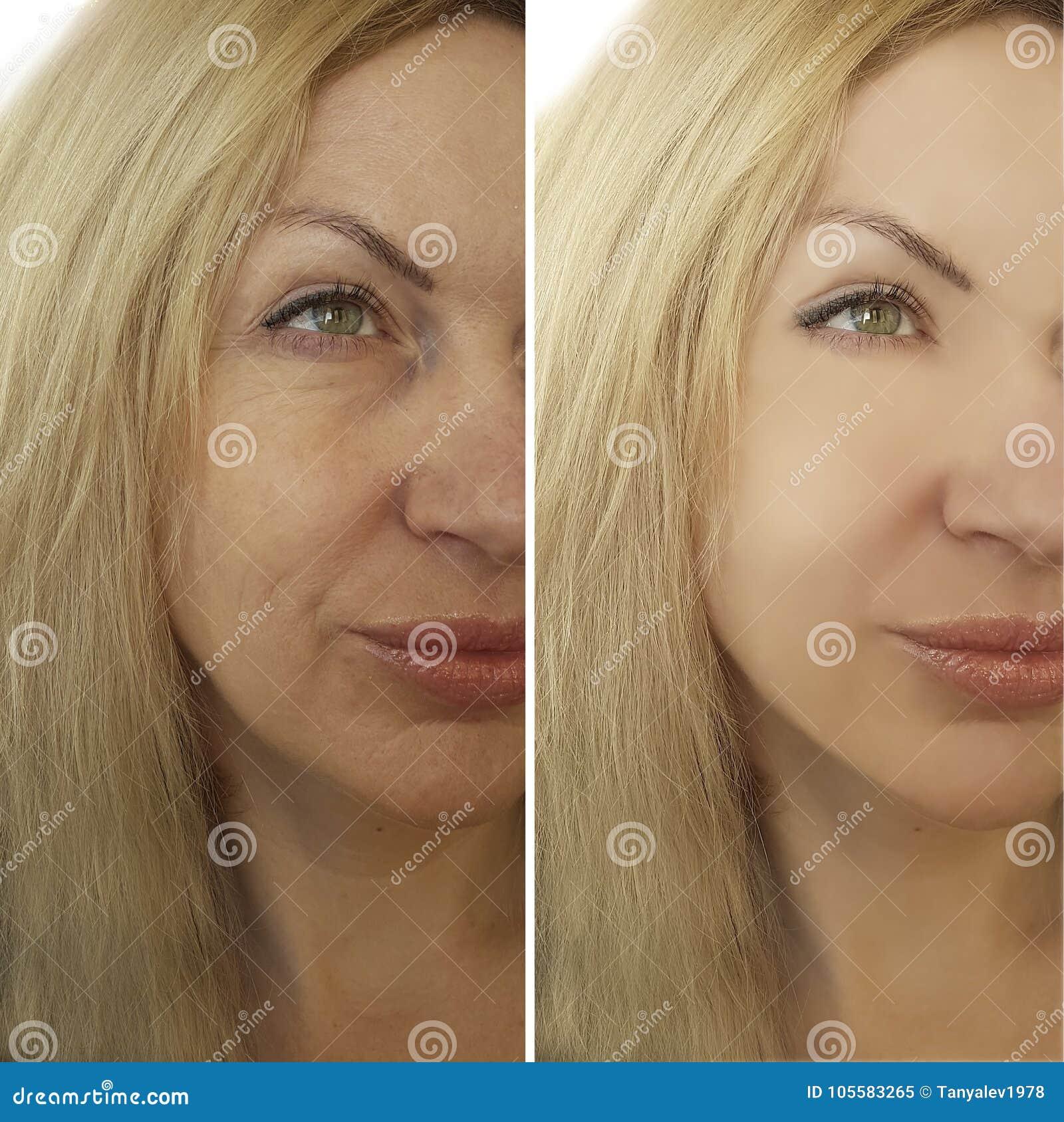 Het gezicht rimpelt vóór en na