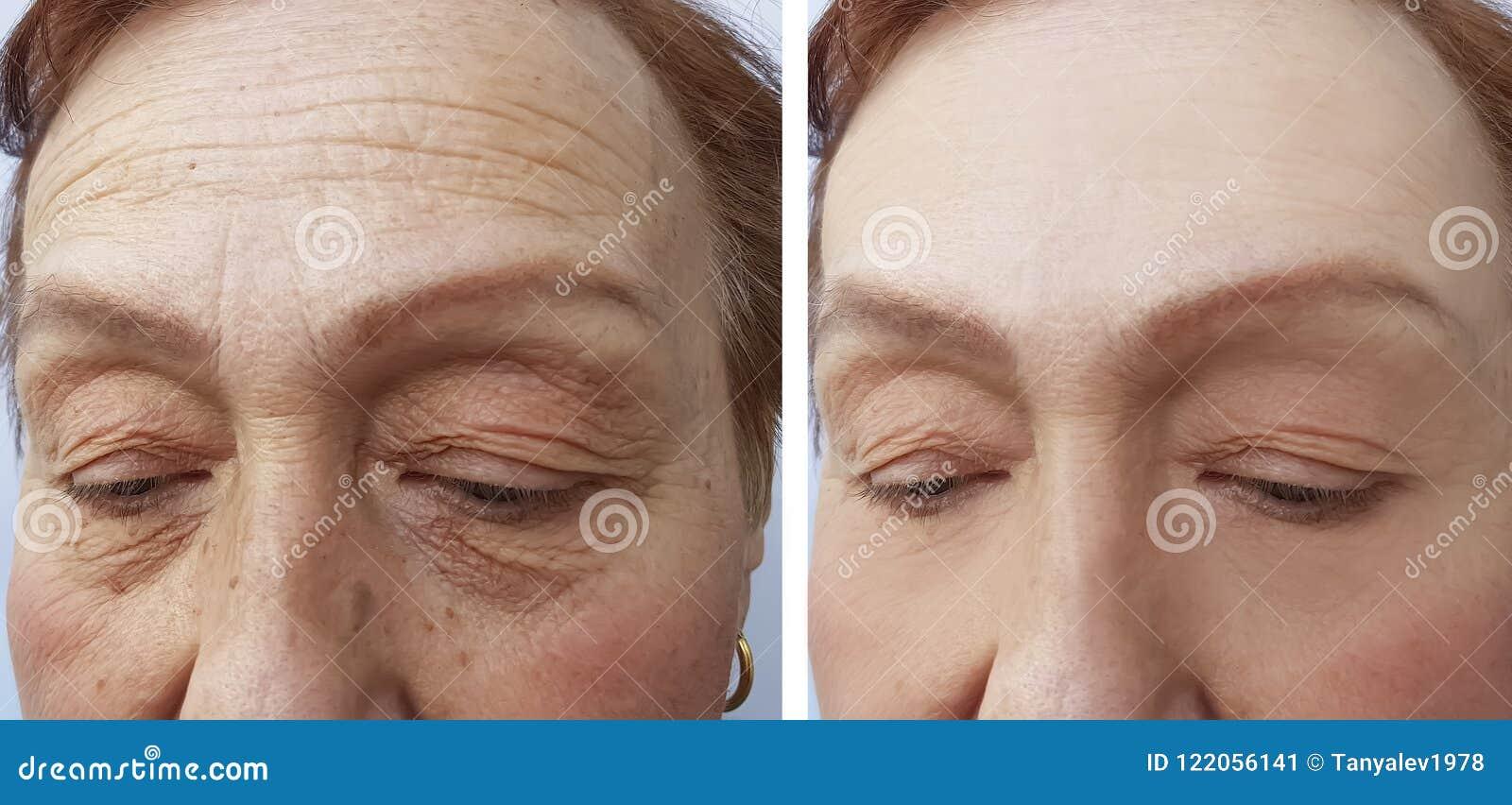 Het gezicht van rimpels van een de bejaarde chirurgievrouw vloeit het gezichtscollageen van de de dermatologiebehandeling, before