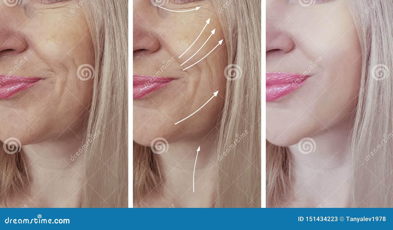 Het gezicht van vrouwenrimpels before and after behandelingscollage
