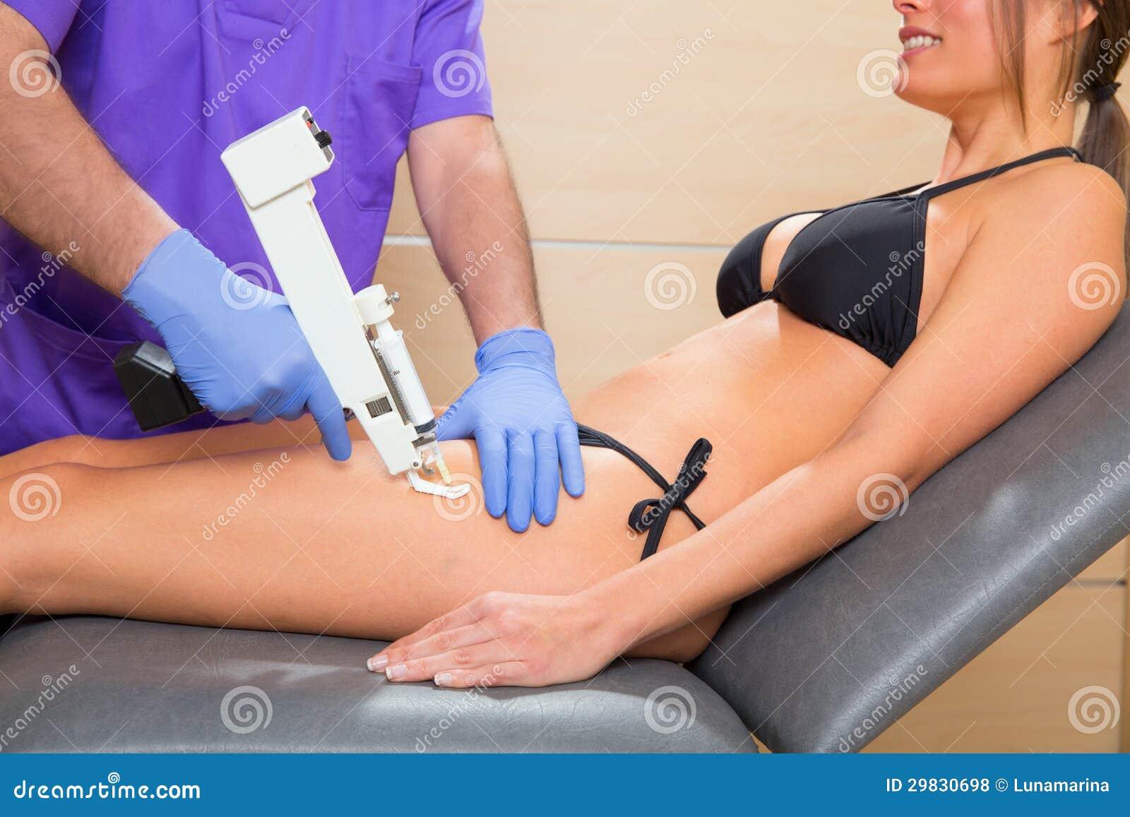Het kanontherapie van Mesotherapy voor cellulite arts met vrouw