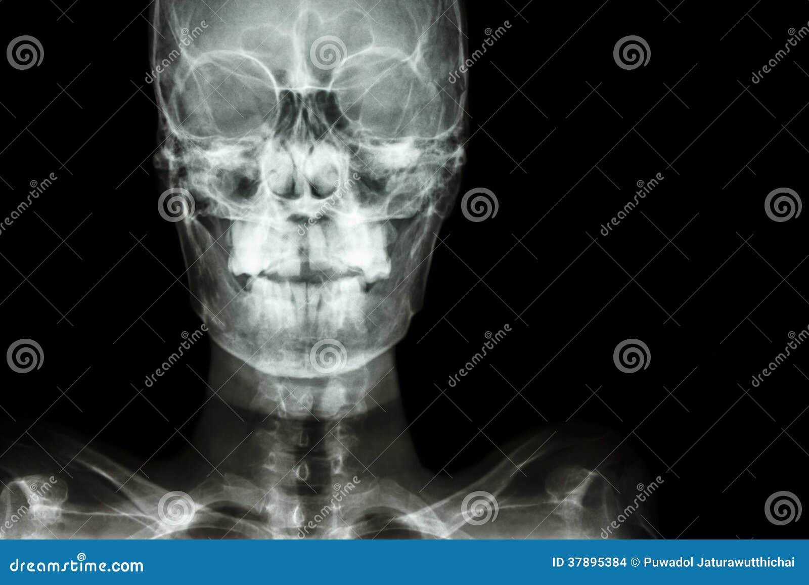 Het lege gebied van de normale mens de schedel en bij rechterkant