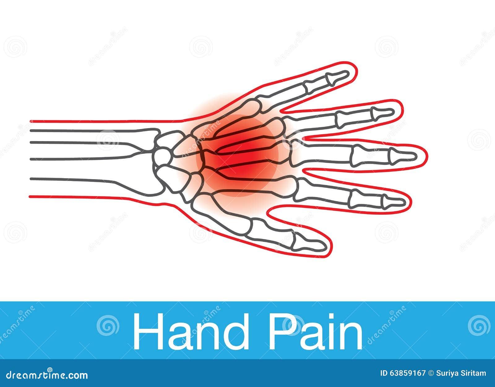 Het Overzicht Van De Handpijn Vector Illustratie - Illustratie ...