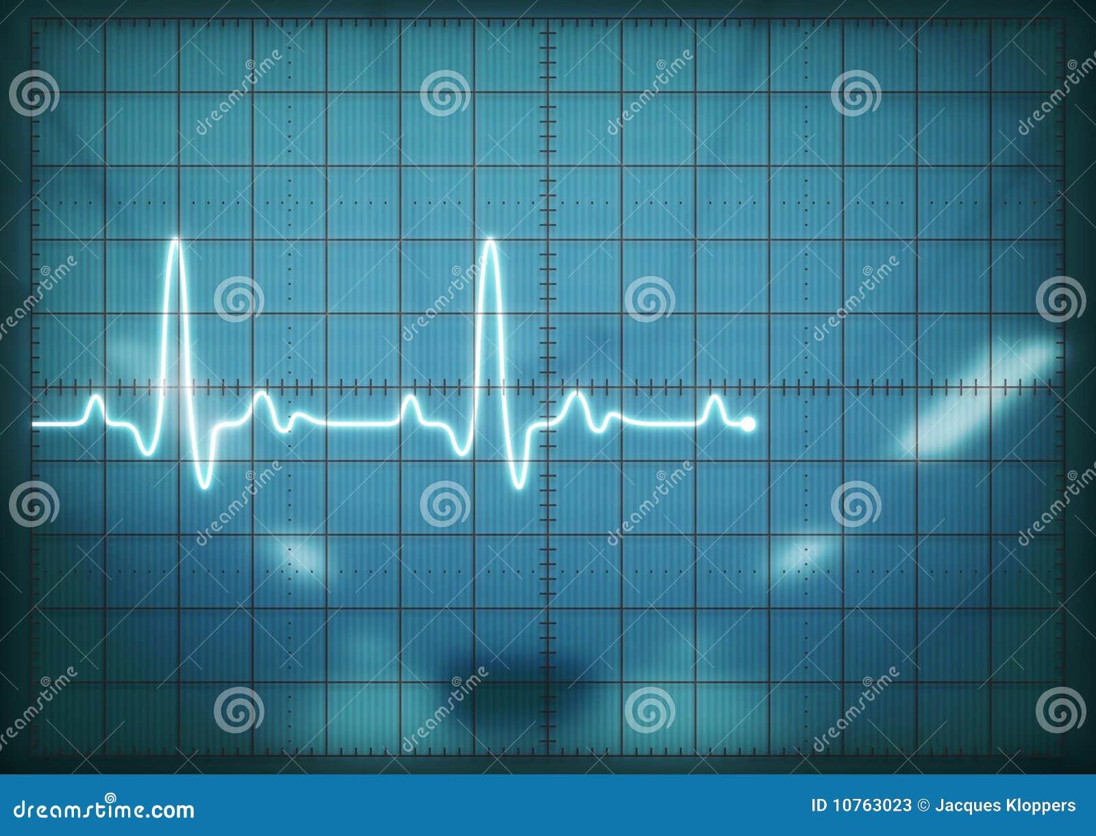 Het scherm dat van de oscilloscoop hartslag toont