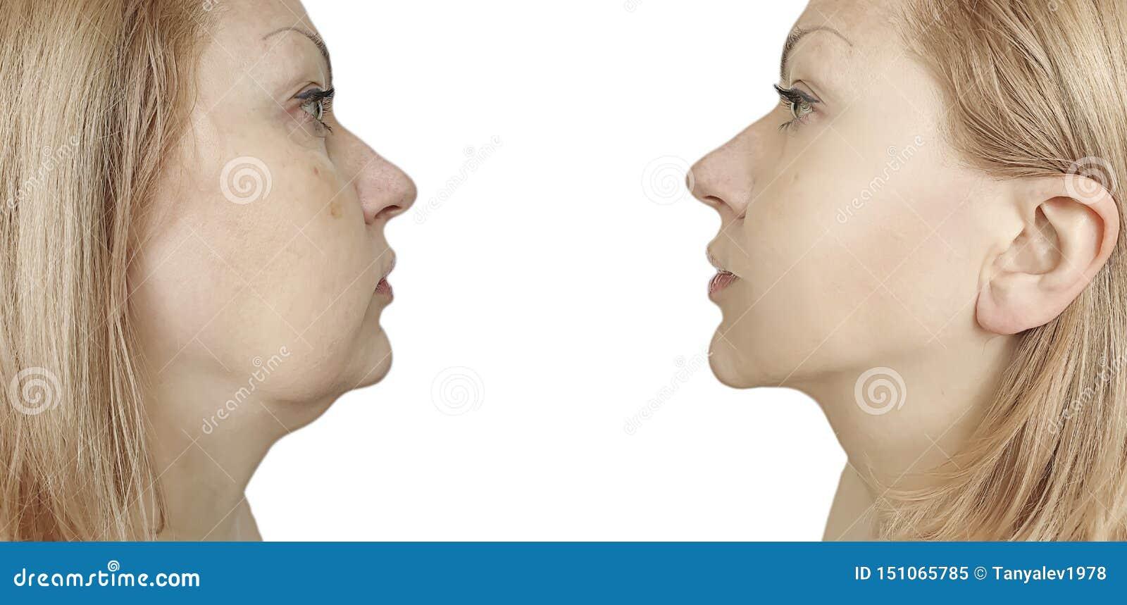 Het verzakkende plastic probleem van de vrouwenonderkin before and after procedurebehandeling