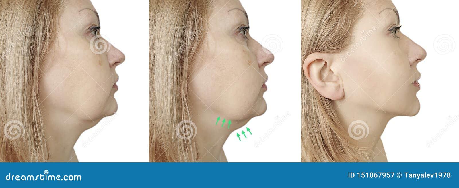 Het verzakkende probleem van de vrouwenonderkin before and after procedurebehandeling