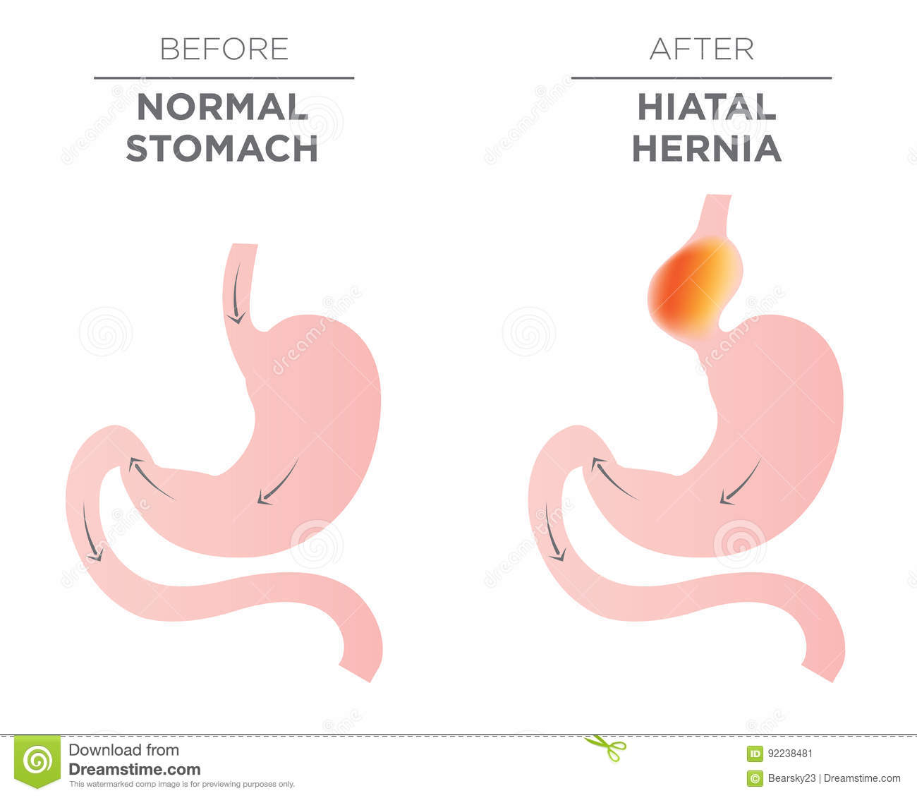 how to fix a hiatal hernia at home