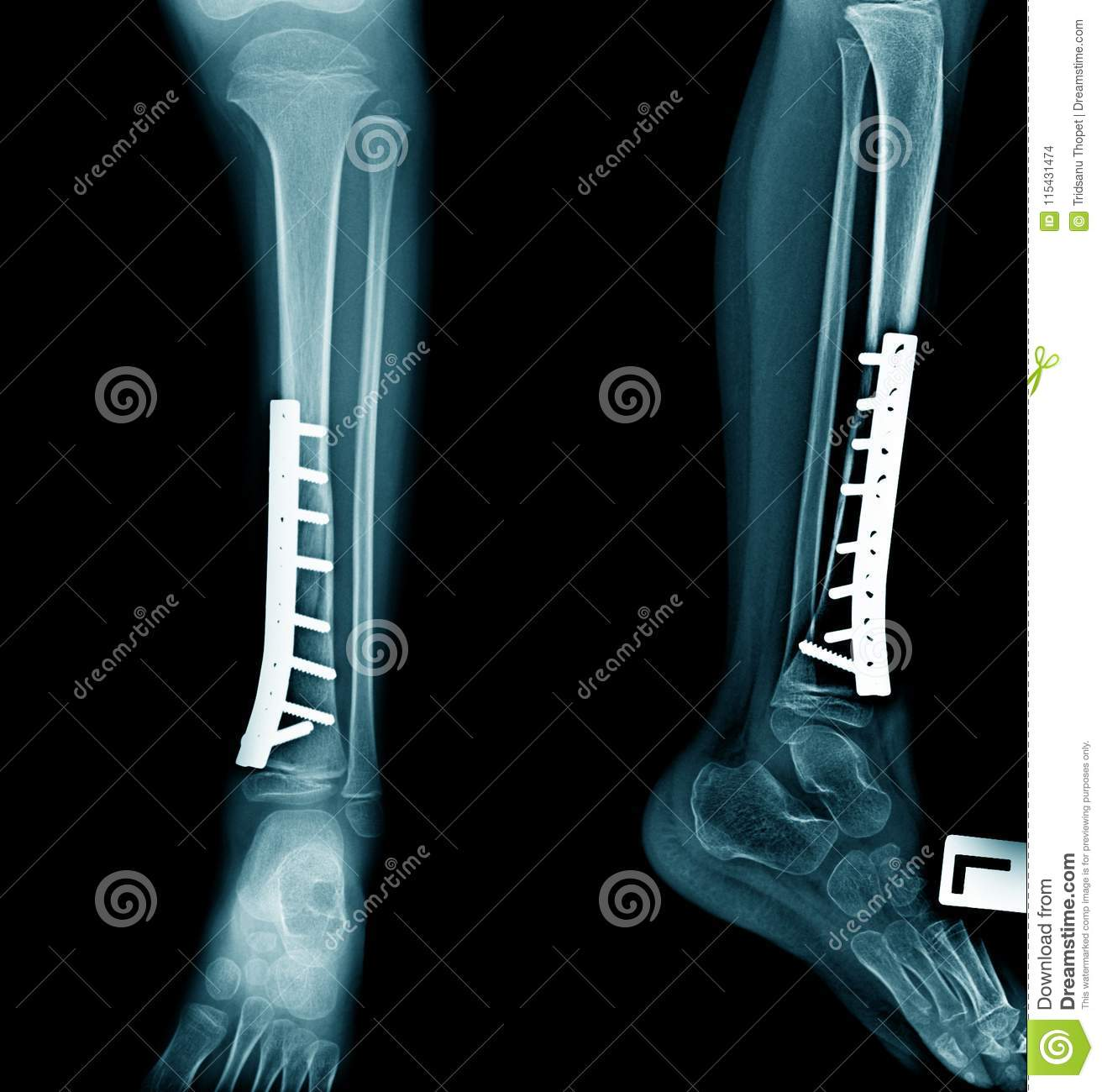 Tibia Fixation X Ray Stock Photo Image Of Foot Ankle 115431474