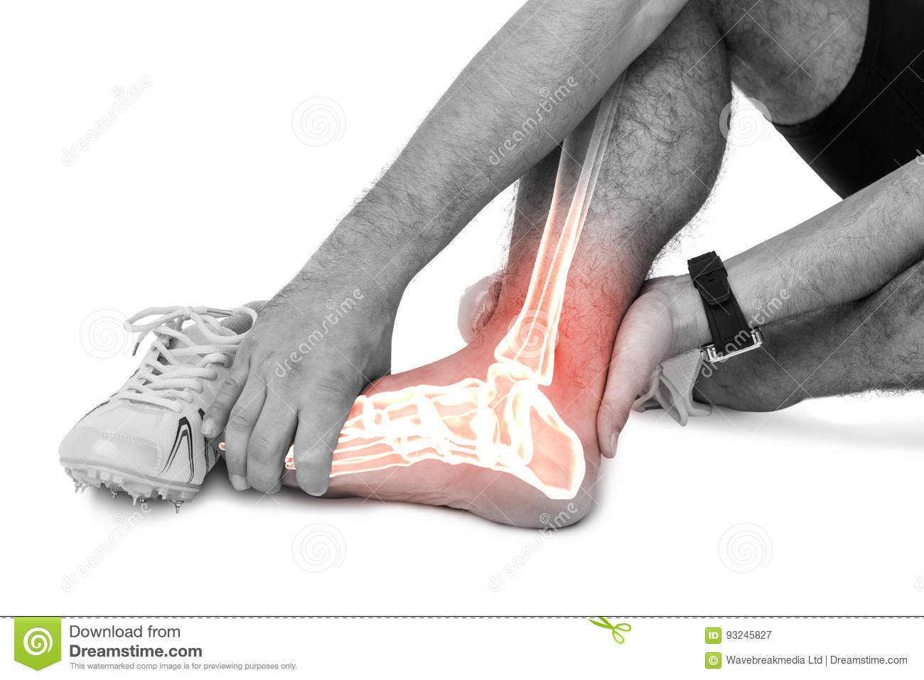 Highlighted leg bones of injured man against white background