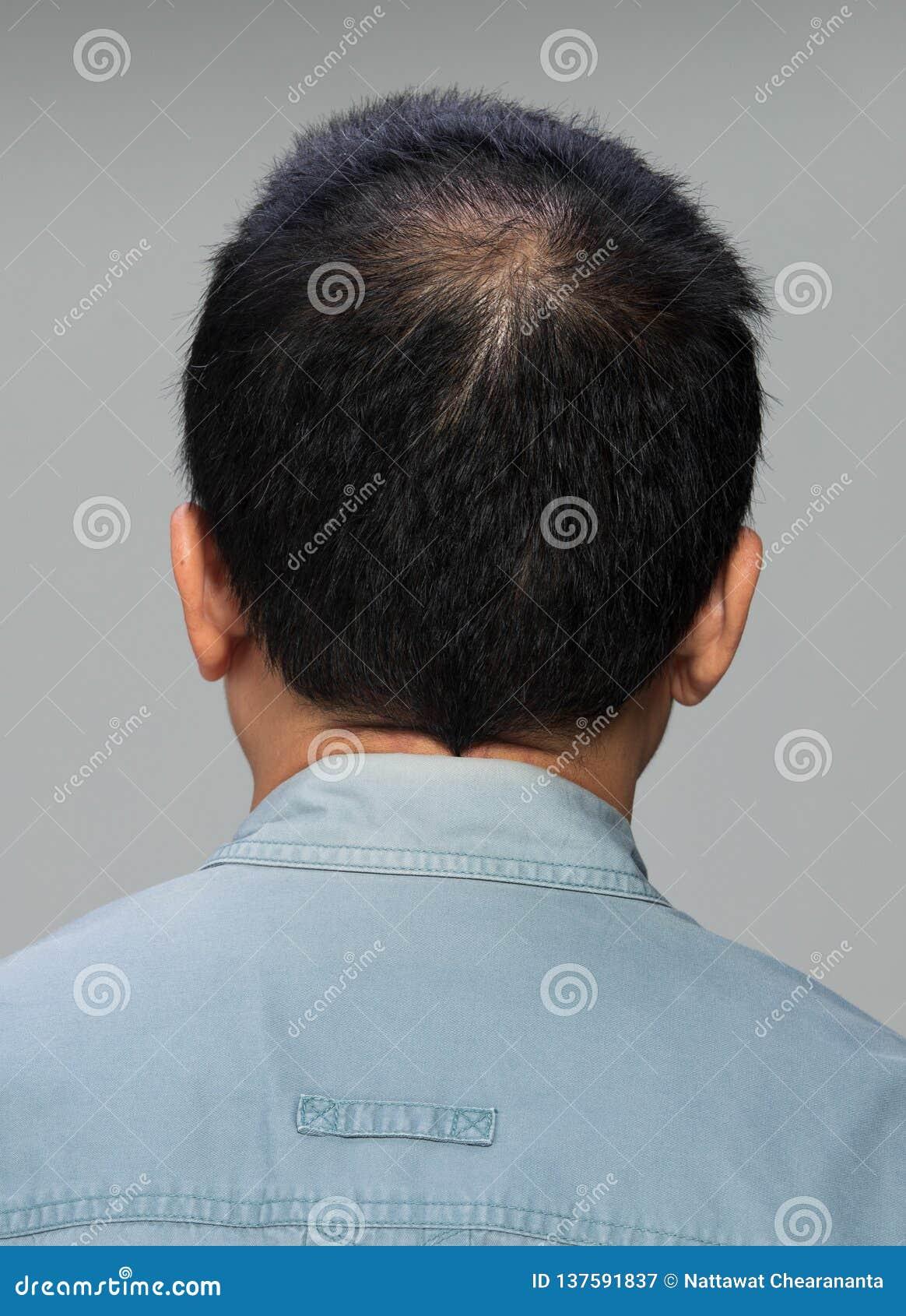 Hintere Ansicht des männlichen Haarkopfteils kahl