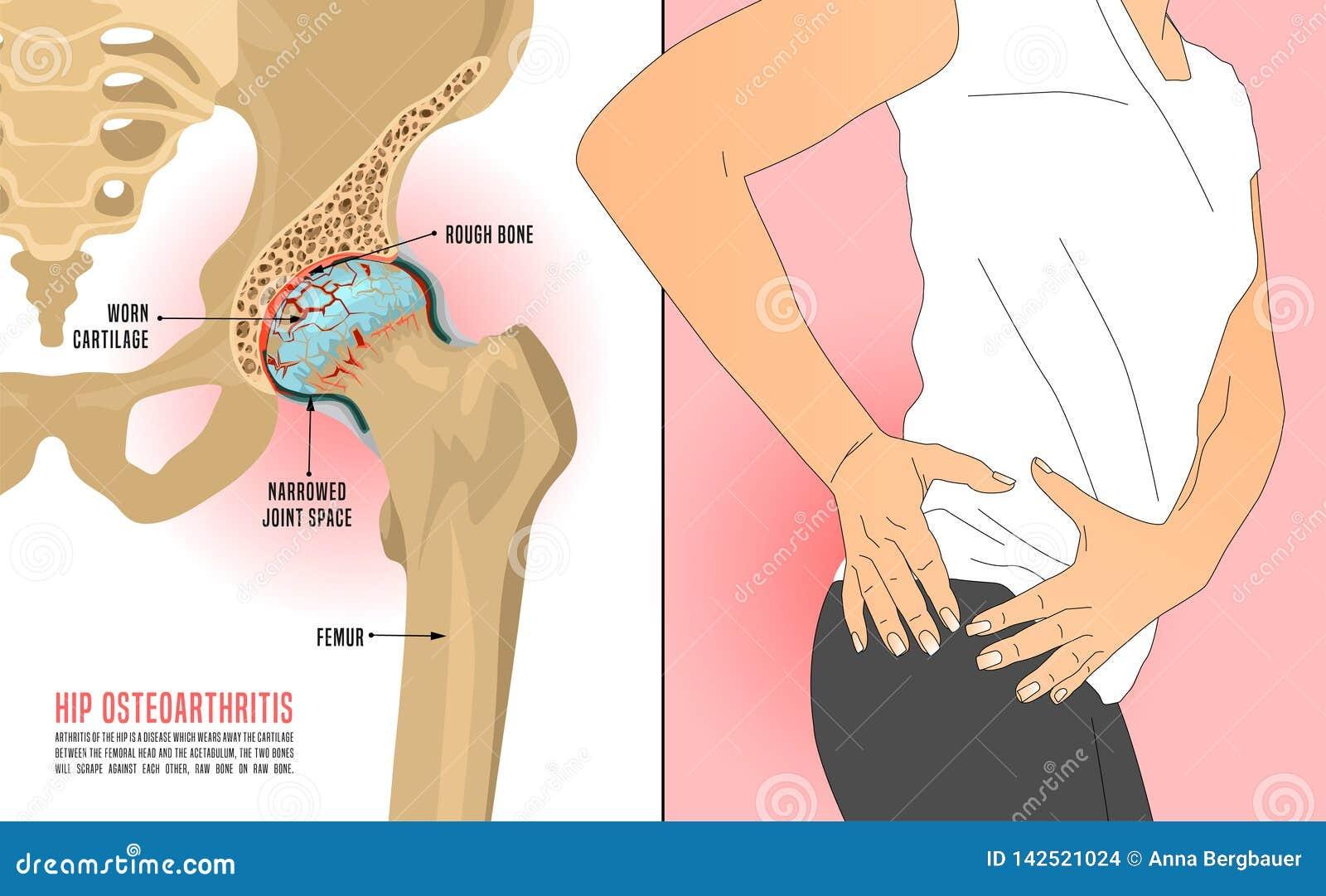 Hip Osteoarthritis Figure stock illustration. Illustration ...  Osteoarthritis Hip Pain