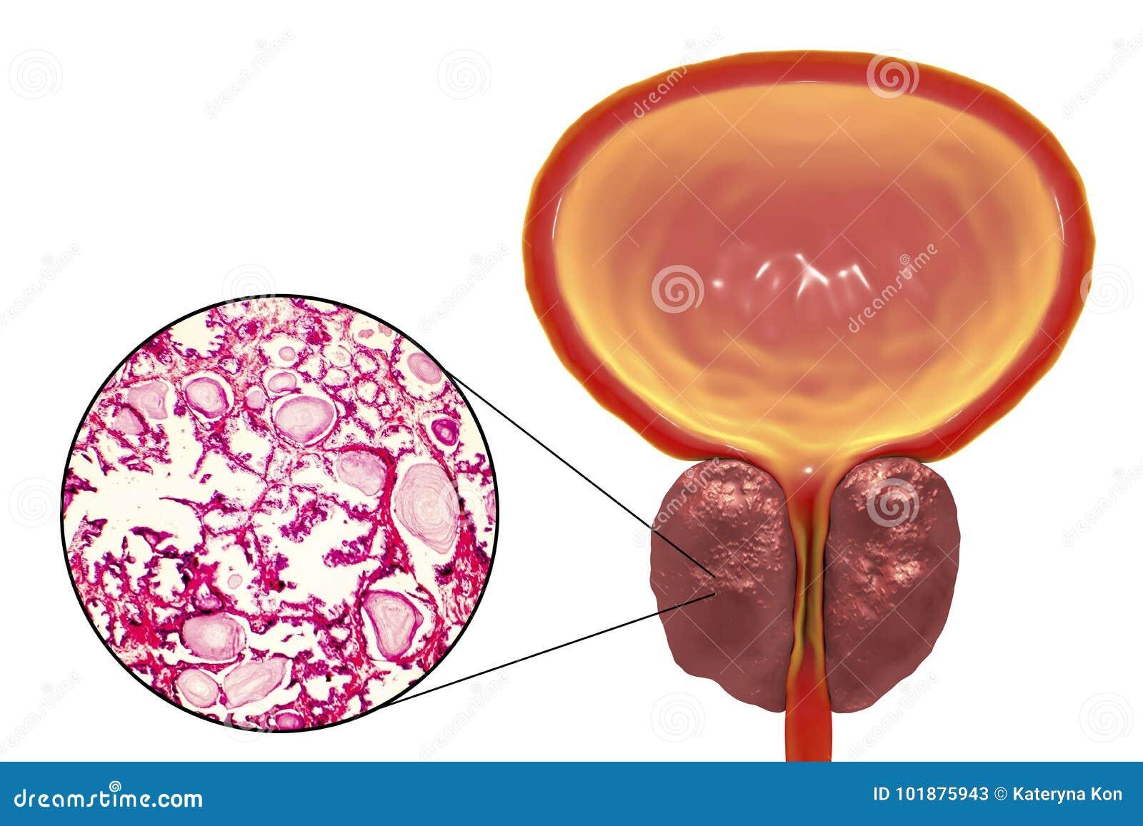 próstata agrandada y vitamina d que