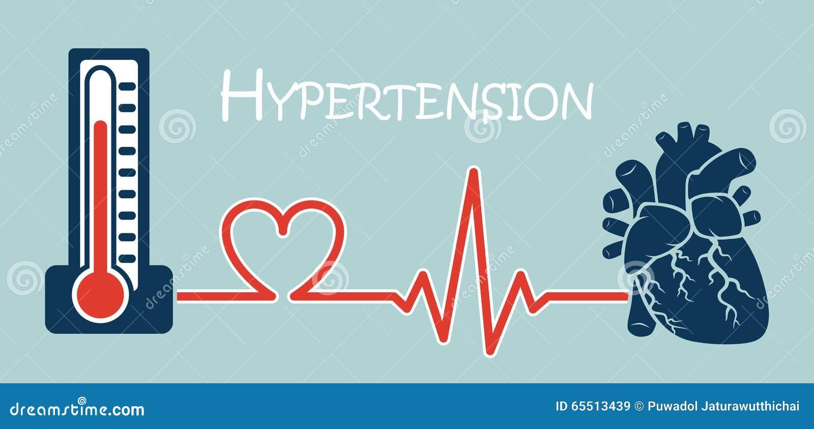 Hipertensión Esencial O Primaria Ilustración del Vector..