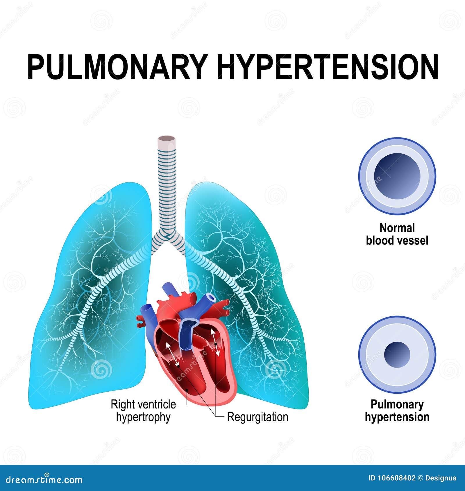 Enfermedad de webmd hipertensión pulmonar