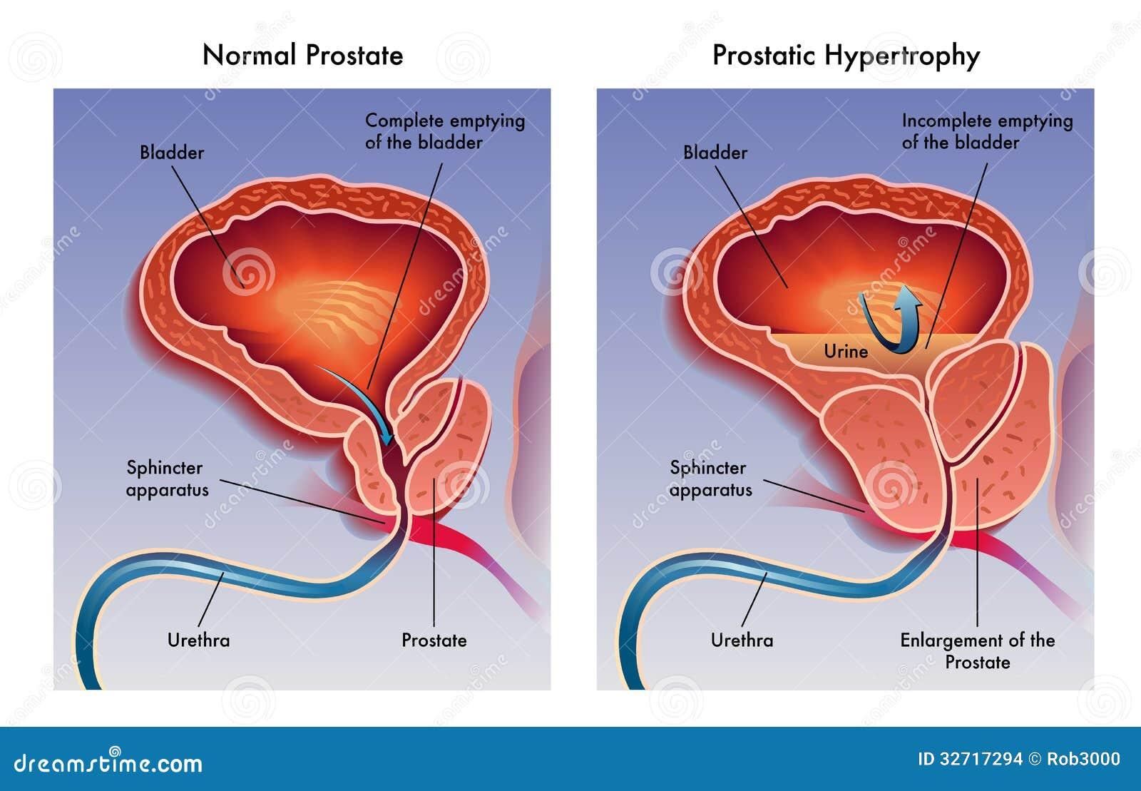 Prostatitis hipertrófia a prosztatitis fájdalom
