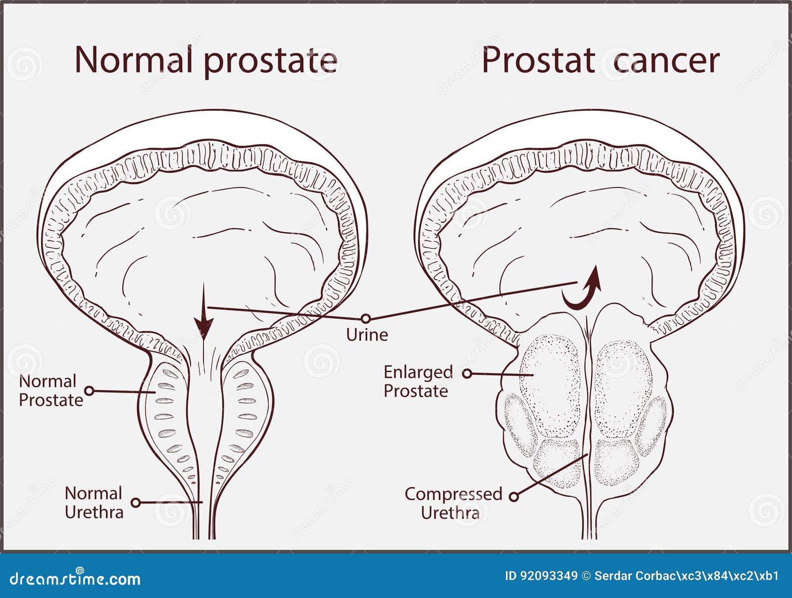 cavidad y sistema de la glándula prostática