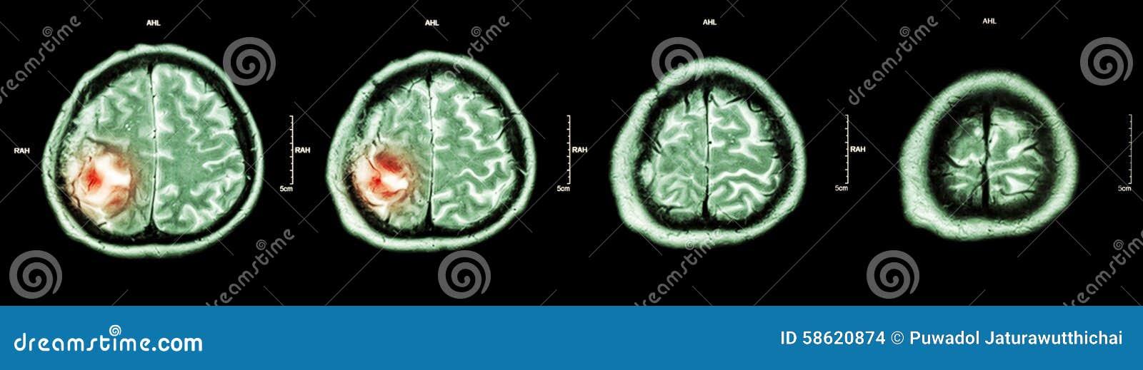 Hirntumor (Filmc$ct-scan Des Gehirns: Zeigen Sie Teil Des Gehirns ...